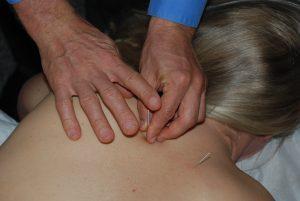 Lafayette Acupuncture San Ramon