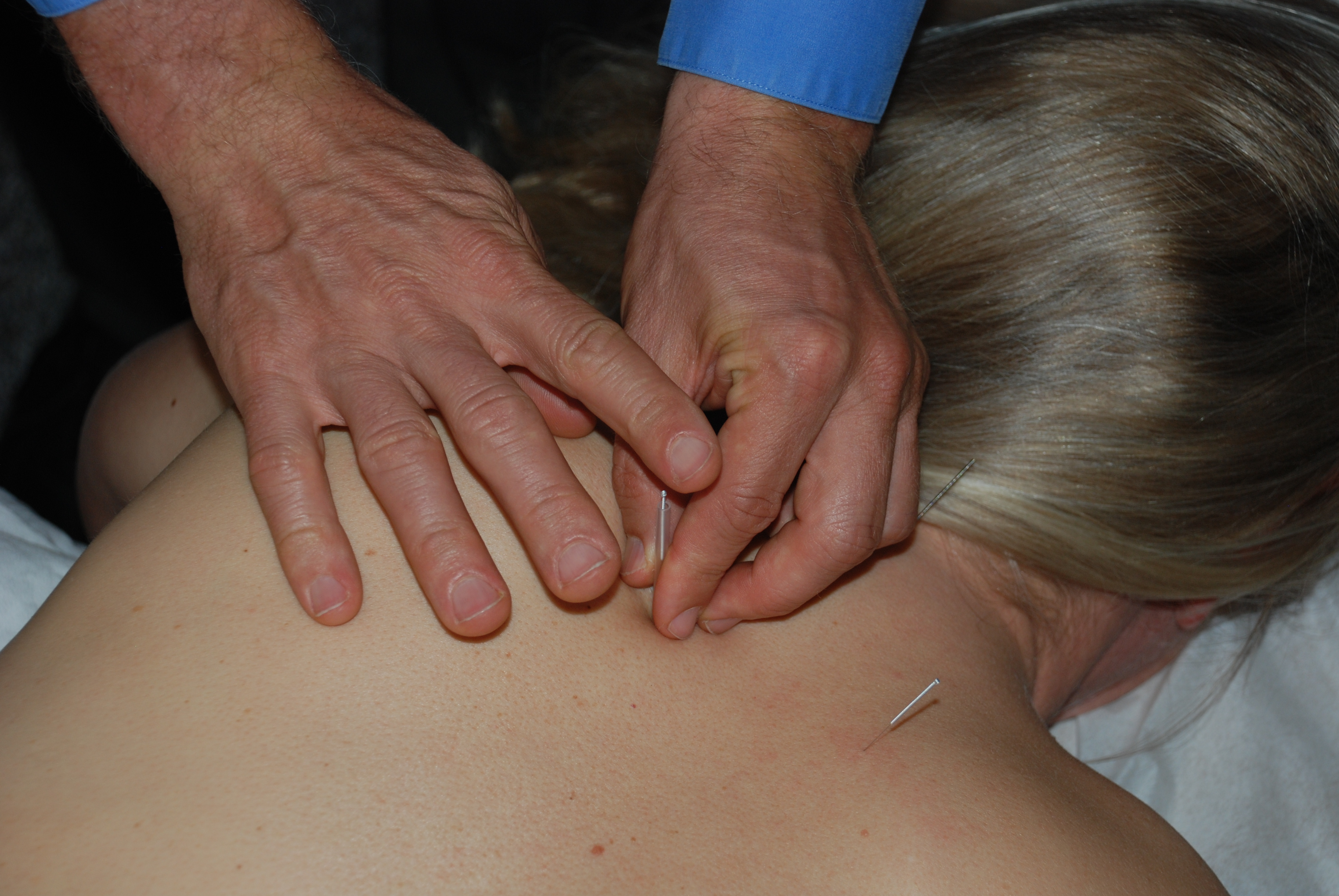 Acupuncture benefits shoulder, neck, and back pain