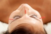 Anti aging acupuncture treatment on young attractive female patient