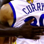 Suction Cup Marks on Steph Curry's Left shoulder